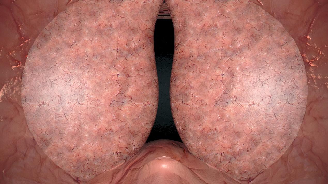 Χειρουργική Ουρολογική imaging