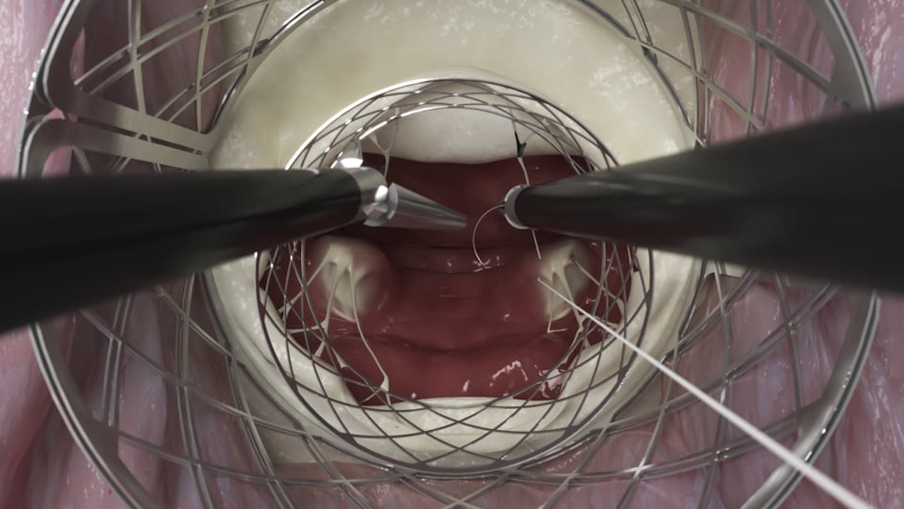 Καρδιοχειρουργική εφαρμογή