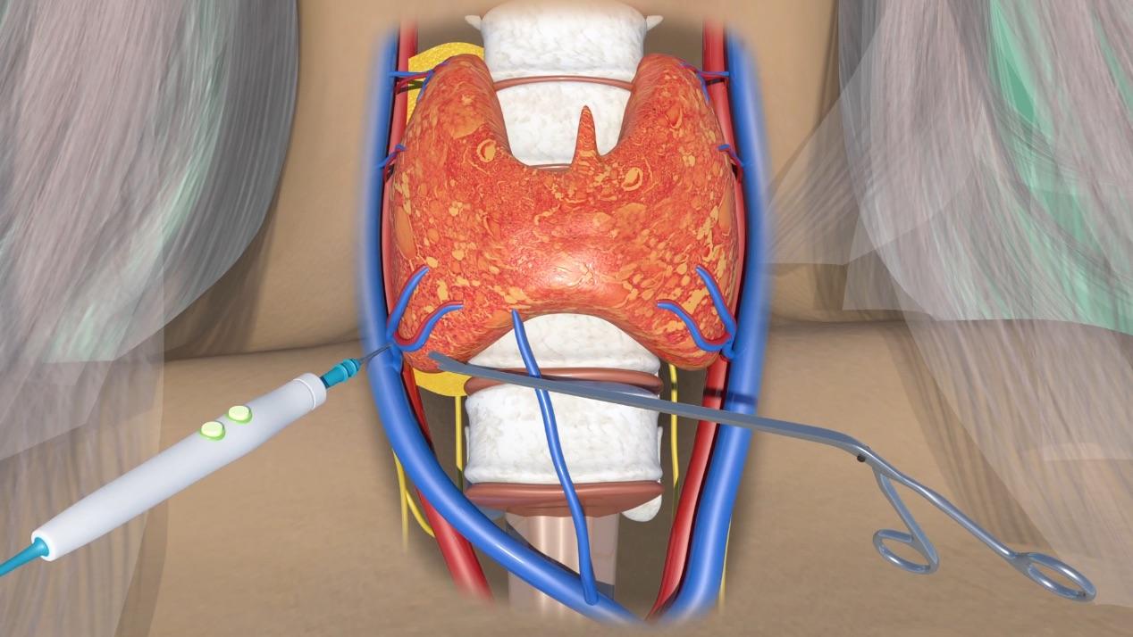 Γενική Χειρουργική εφαρμογή